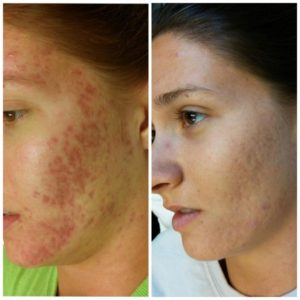 Фото лица до и после криотерапии