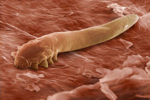 Клещ демодекс под микроскопом фото